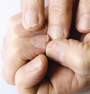Comment les ongles se fragilisent ?